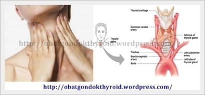 obat gondok thyroid